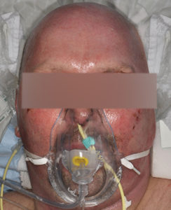Deep Partial Burn 1 Week Post RECELL Treatment