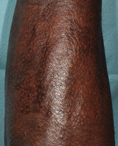 Deep Partial Burn on Arm - 16 Weeks Post Treatment with RECELL