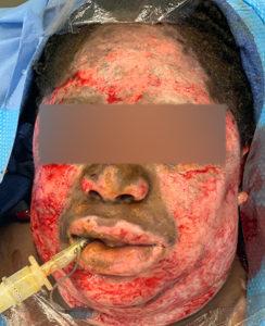 Skin Burn Treatment Day 0