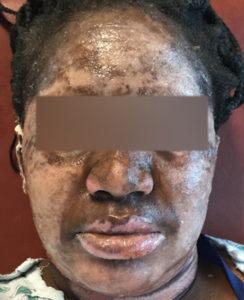 Skin Burn Treatment 9 Days Post Treatment