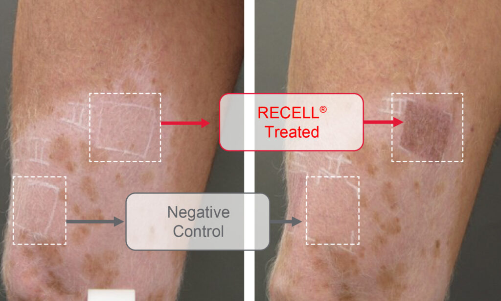 RECELL treated vitiligo patient